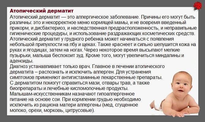 Питание мамы и атопический дерматит у ребенка - запись пользователя надежда (nadenka-vasilisa) в сообществе грудное вскармливание в категории питание мамы - babyblog.ru