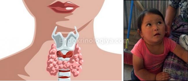 увеличенная щитовидка у ребенка