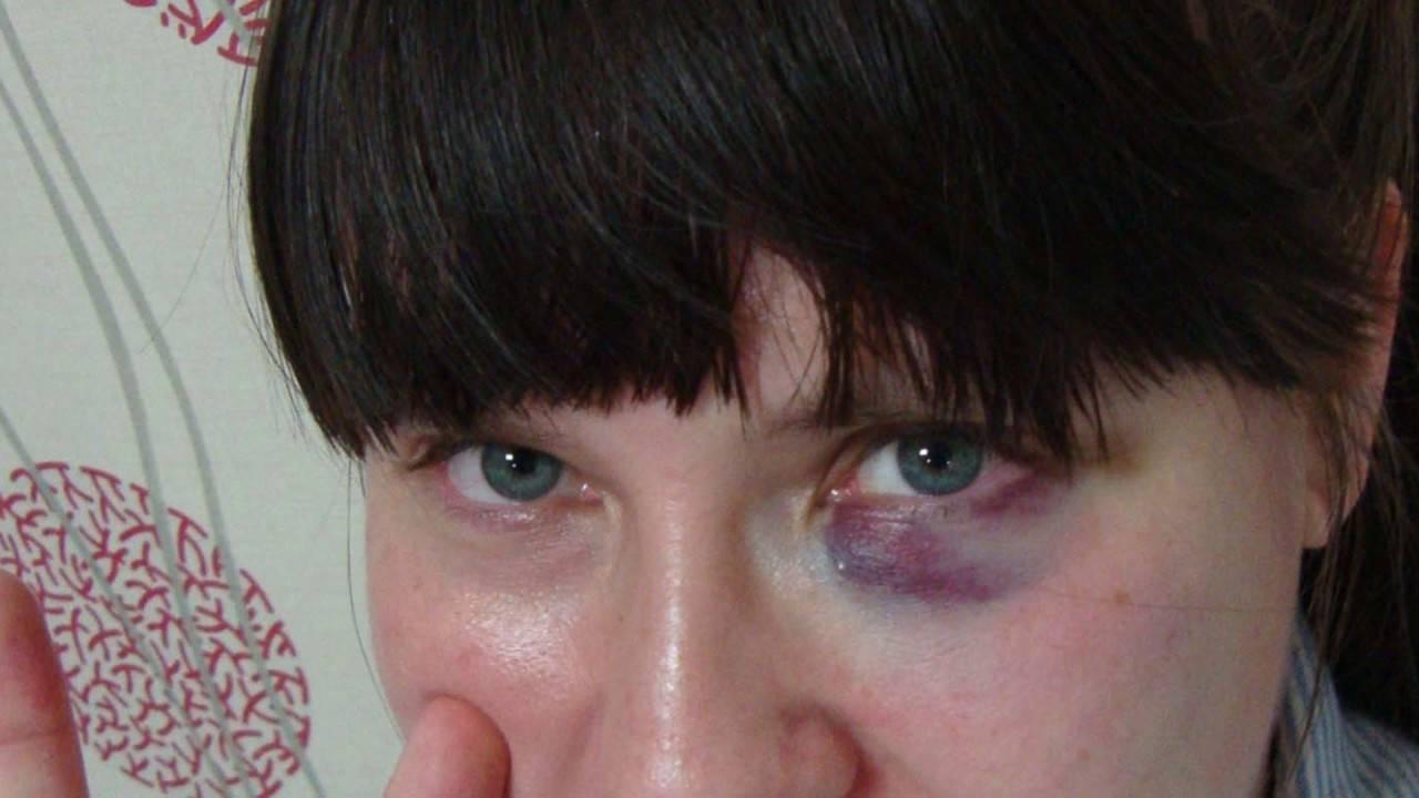 как лечить покраснение глаз в домашних условиях