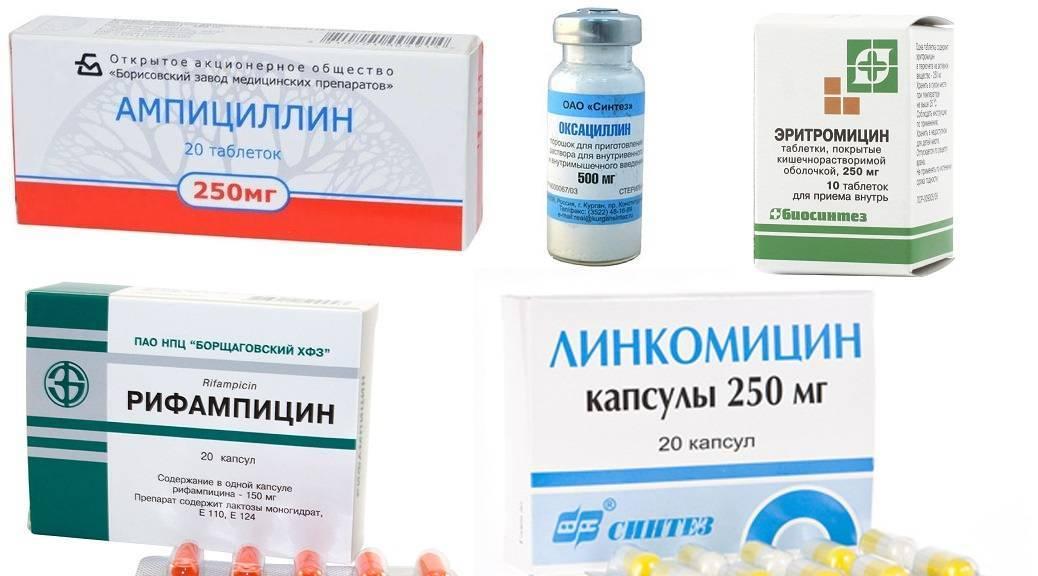 Обострение и лечение хронического холецистита