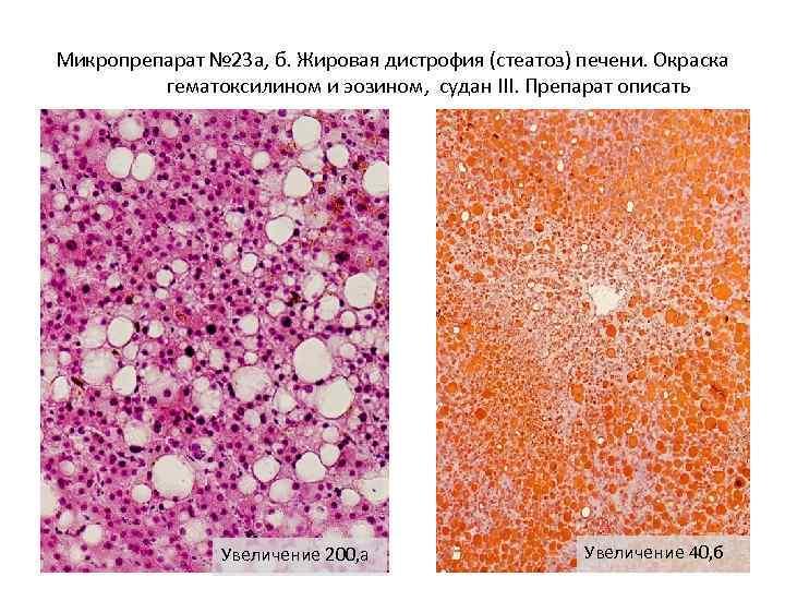 жировая дистрофия печени лечение