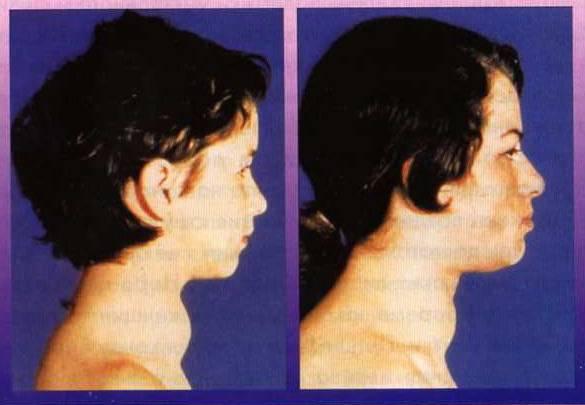 увеличенная щитовидная железа у ребенка 6 лет