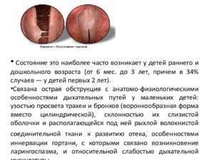 ларингит трахеит ларинготрахеит у детей
