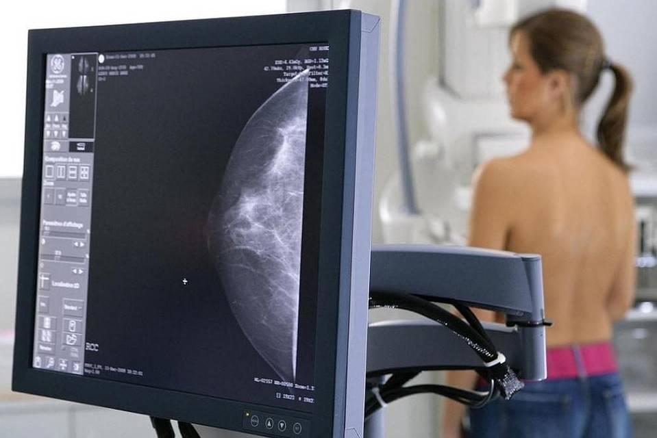 Как делается и что показывает маммография молочных желез у женщин
