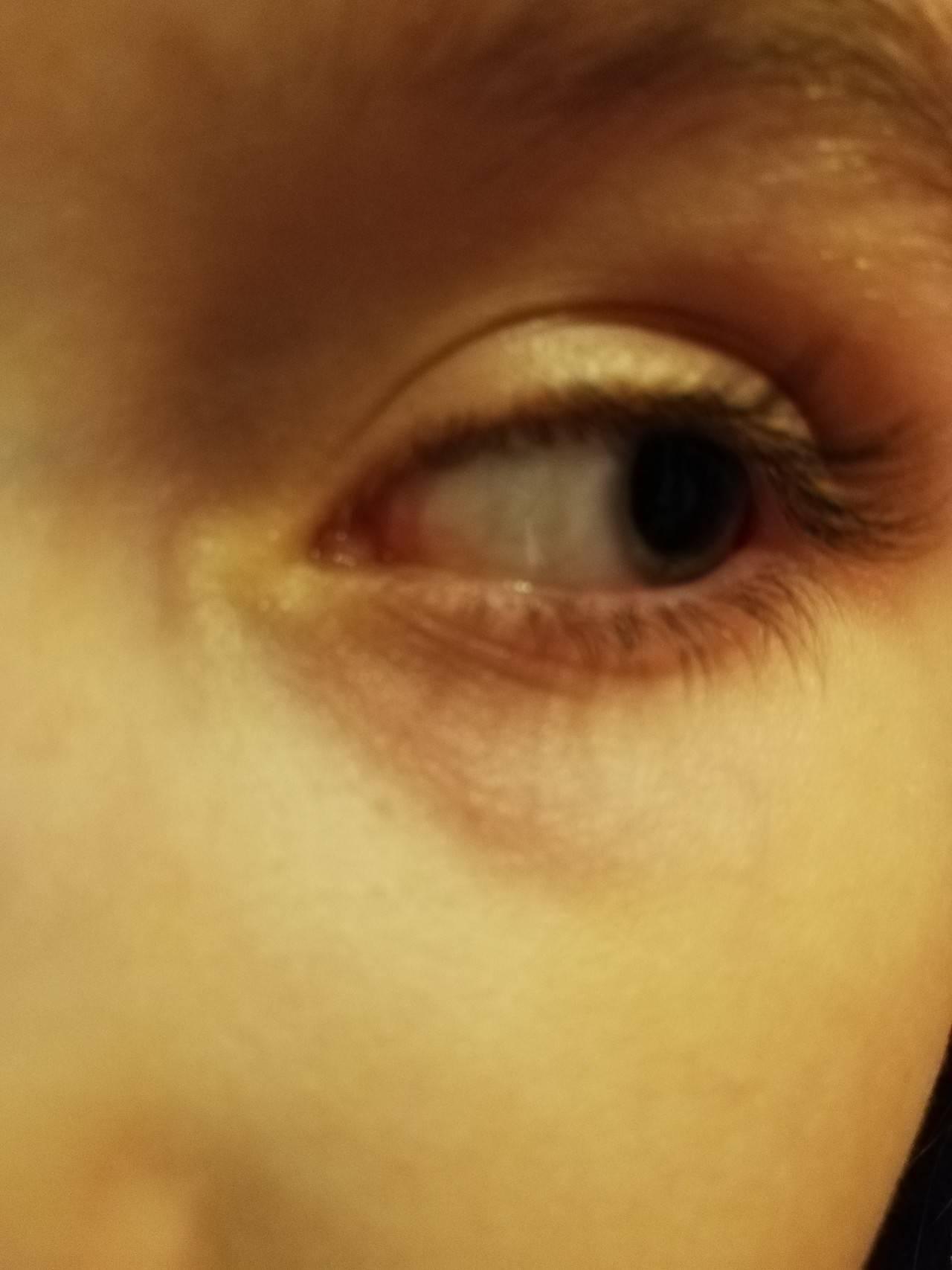При каких заболеваниях появляется воспаление в уголке глаза