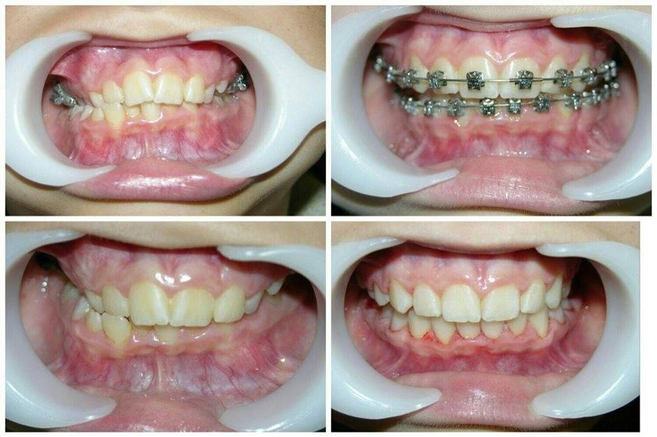 Брекеты до и после — фото зубов после снятия конструкций