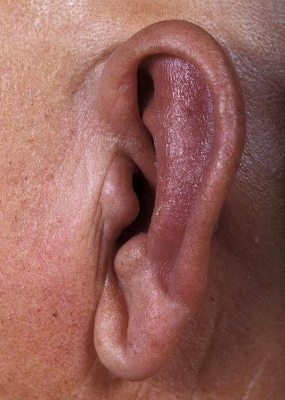 воспалилась мочка уха