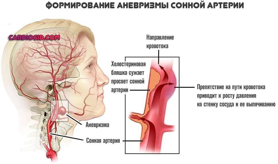 Стенозирующий атеросклероз экстракраниальных отделов бца