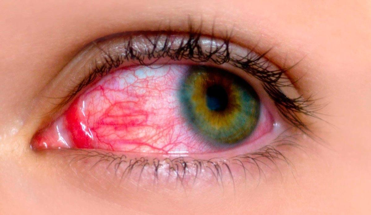 Вирусный конъюнктивит: причины, симптомы и лечение
