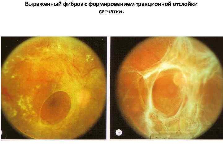 Эпиретинальная мембрана сетчатки глаза (эпиретинальный фиброз)