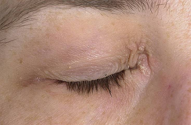 перианальный дерматит у взрослых