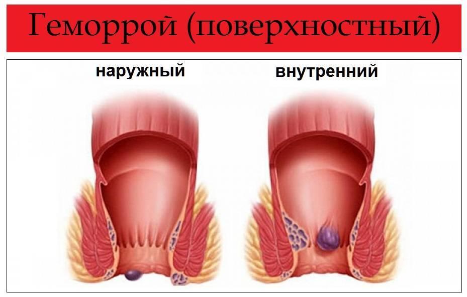 воспалился геморроидальный узел