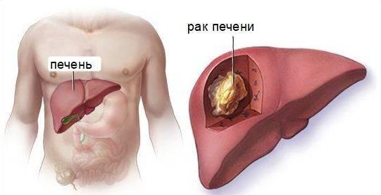 рак печени 4 степени с метастазами