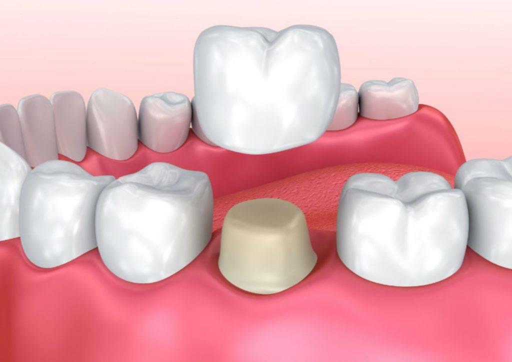 несъемный зубной протез