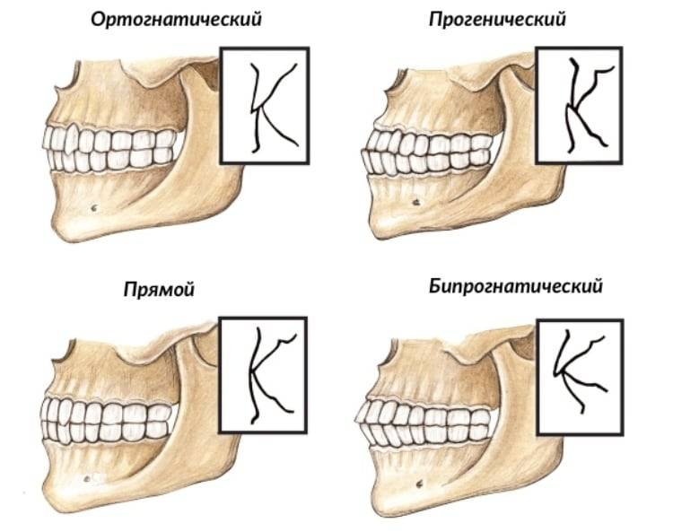 Виды прикусов зубов у человека