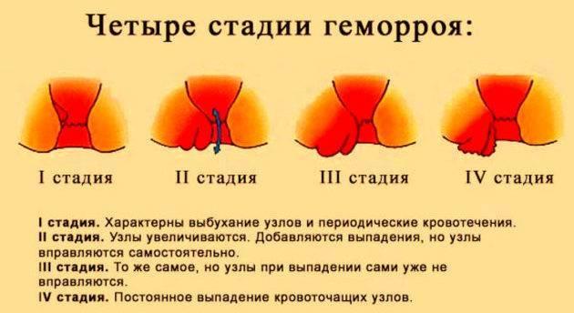 Геморрой кровит: что делать, как остановить кровотечение при геморрое
