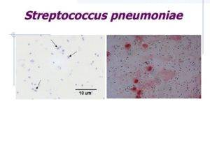 Стрептококк: пути передачи, симптомы, диагностика и лечение