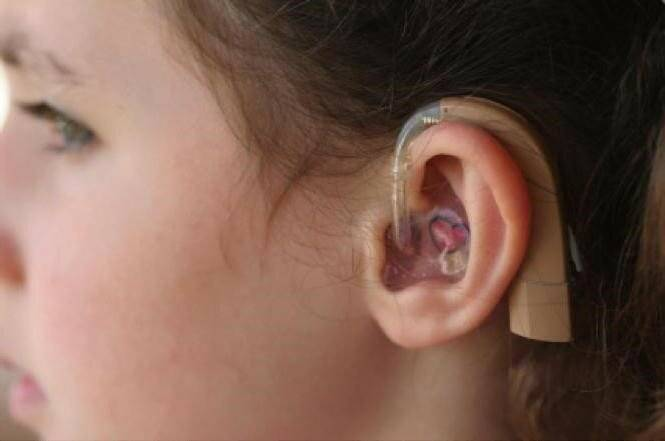 восстанавливается ли слух после отита