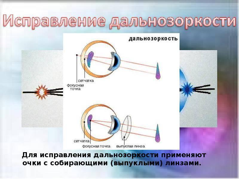 лечение дальнозоркости лазером