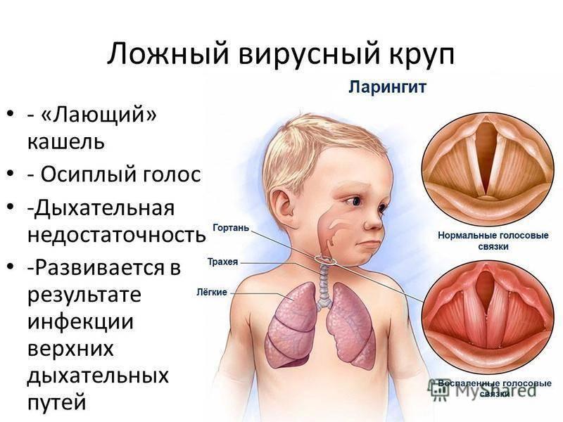 Ларинготрахеит — причины, признаки, симптомы и лечение ларинготрахеита у взрослых