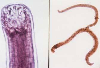 Некатороз - симптомы болезни, профилактика и лечение некатороза, причины заболевания и его диагностика на eurolab
