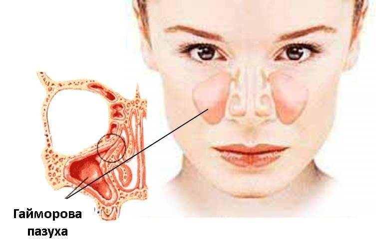 Киста в гайморовой пазухе — симптомы и лечение