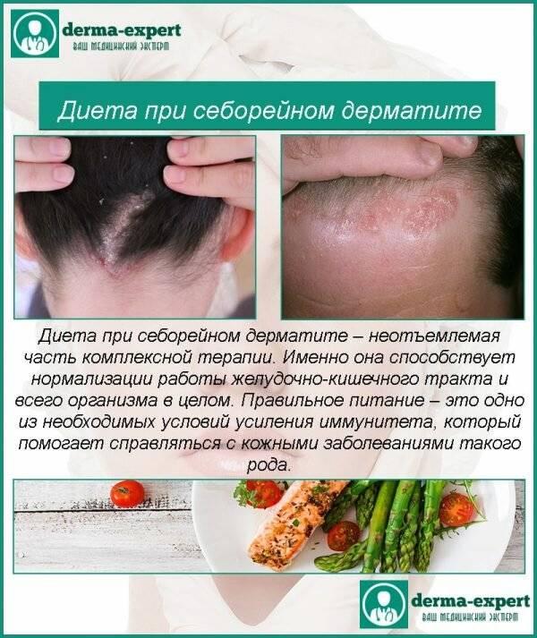 Диета при дерматите у взрослых на руках