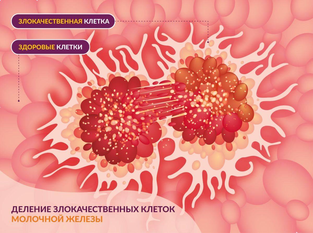 Лигнаны семени льна – защита от эстрогензависимых опухолей. лечение гормонально-зависимых опухолей что такое эстроген зависимые опухоли
