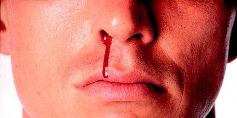 кровь из носа из одной ноздри