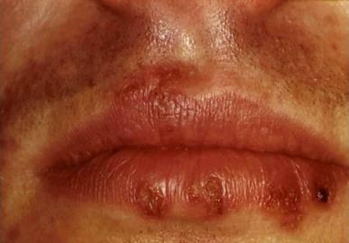 Правильное лечение герпеса 6 типа и самое подробное описание вируса