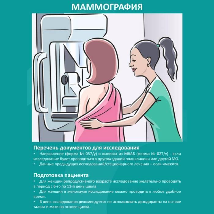 как подготовиться к маммографии молочных желез