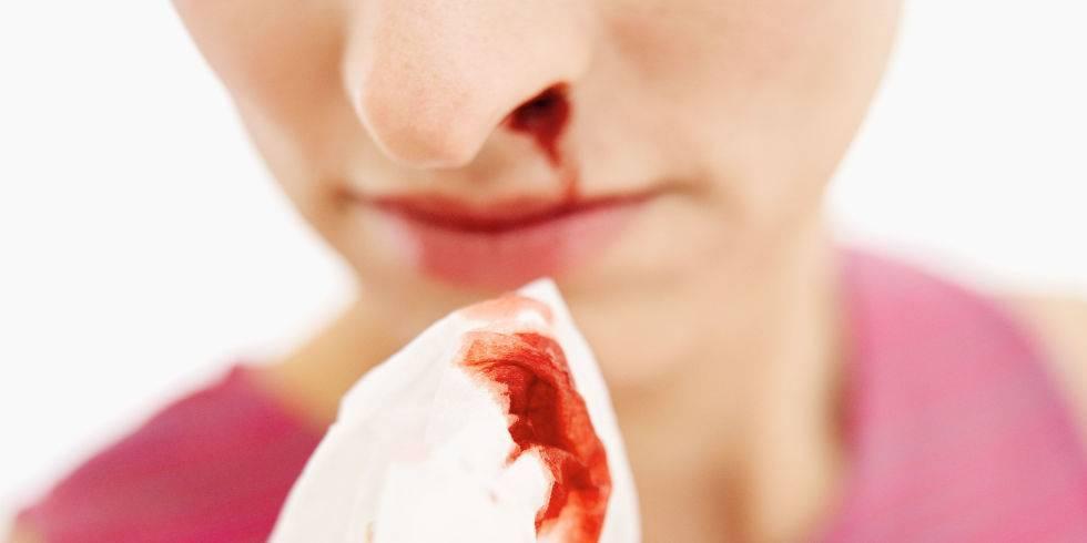 В носу запекается кровь: причины. козявки с кровью. что делать