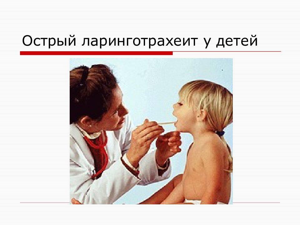 Симптомы и лечение ларинготрахеита у взрослых