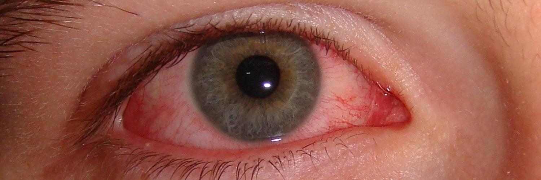 ожог глаза лечение