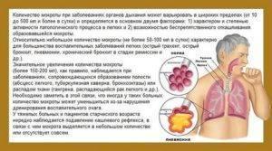 сухой кашель при фарингите лечение