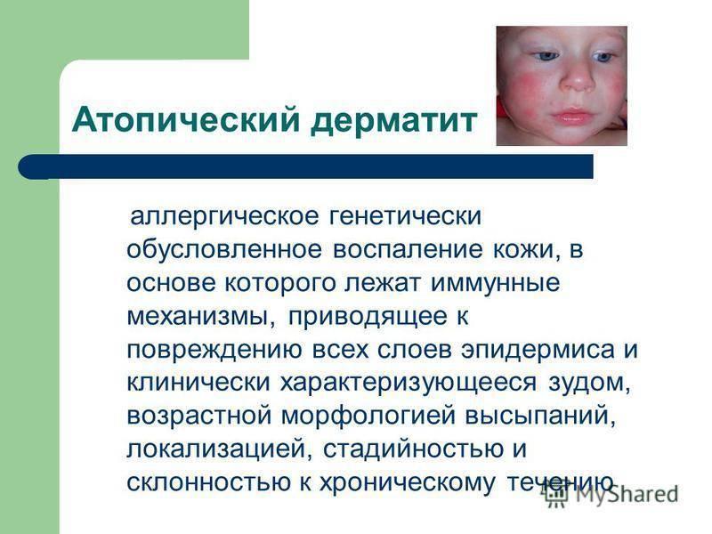 Похоже, у моей дочки всё же атопический дерматит;((