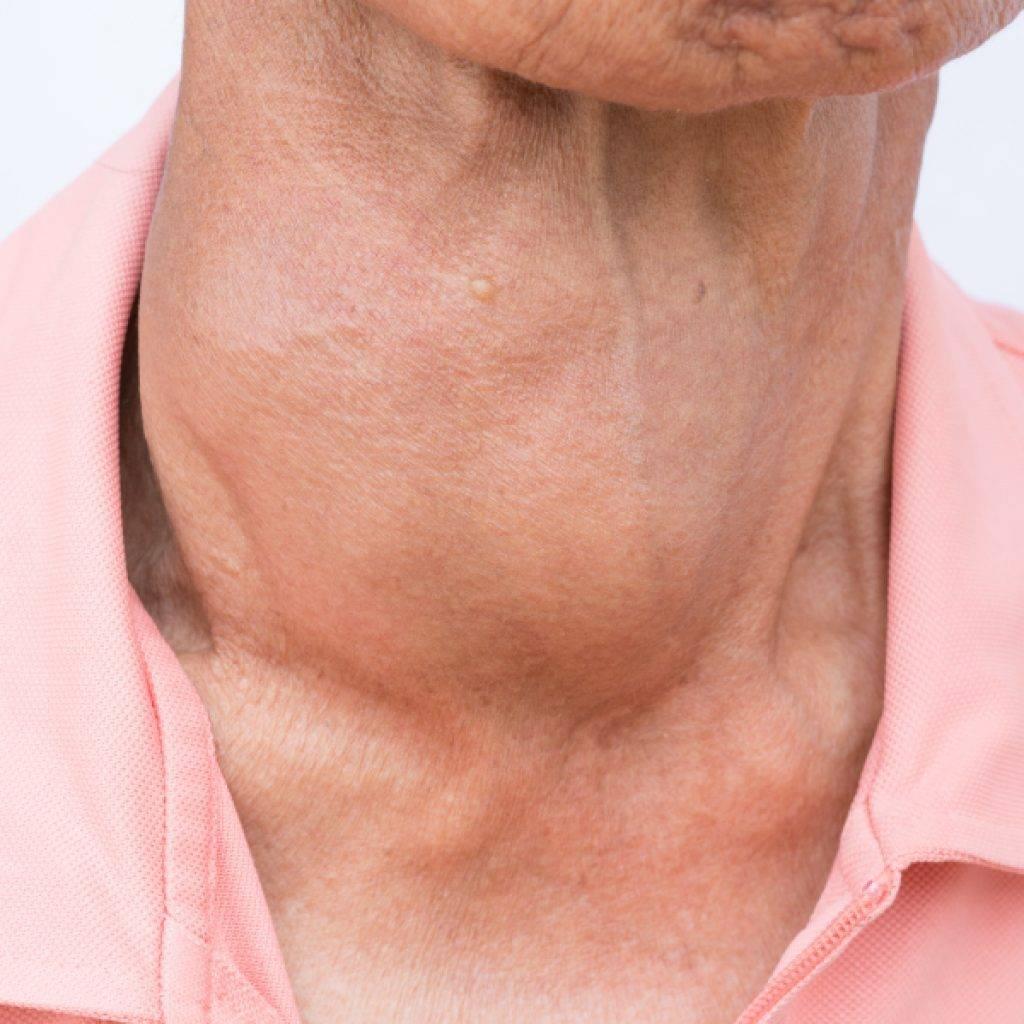 Рак щитовидной железы - симптомы, стадии, формы, диагностика, лечение
