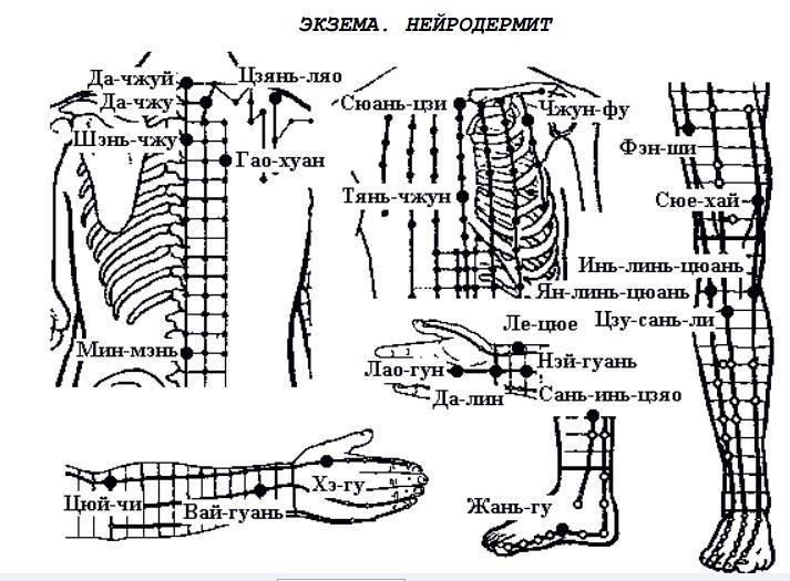 Атопический дерматит, нейродермит