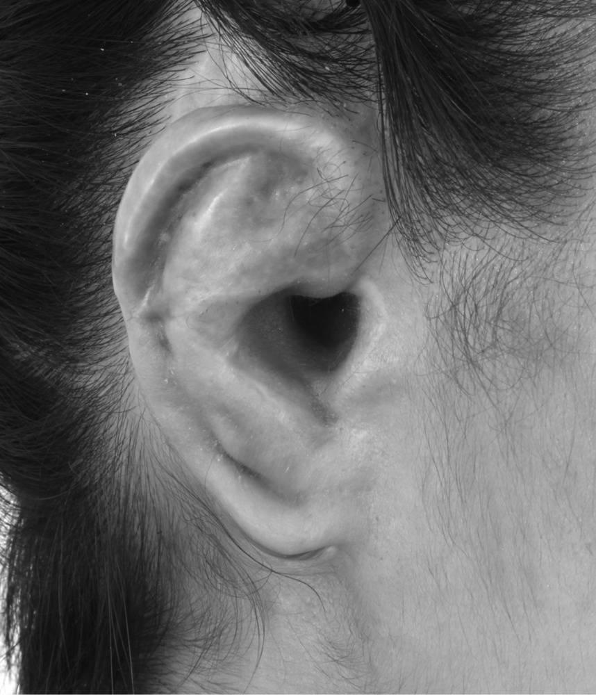 воспаление хряща ушной раковины