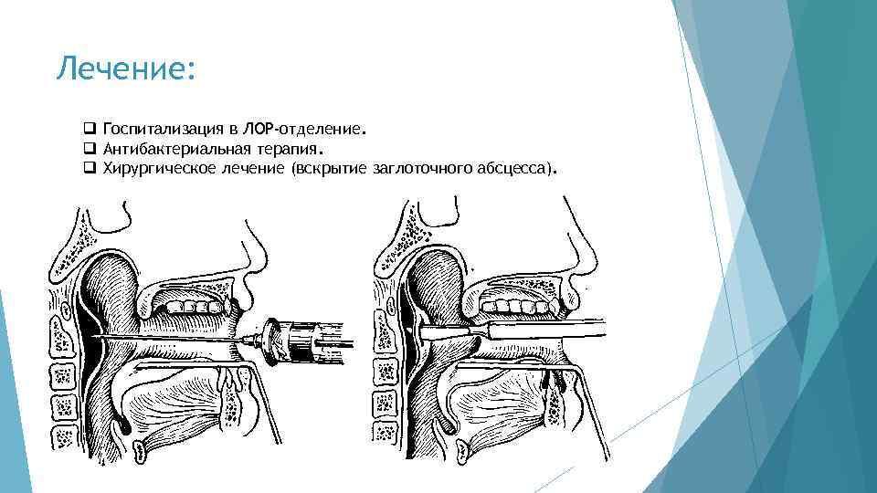 Заглоточный абсцесс