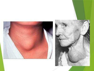 аденома щитовидной железы лечение