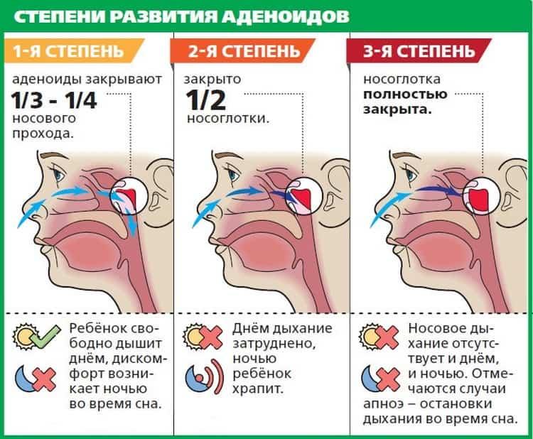 аденоиды лечение