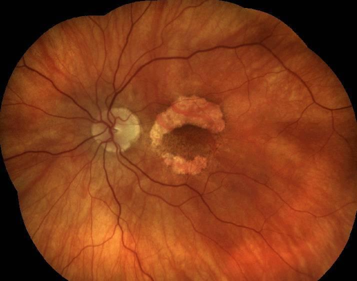 Дистрофия сетчатки глаза: симптомы, диагностика и лечение. периферическая дистрофия сетчатки глаза