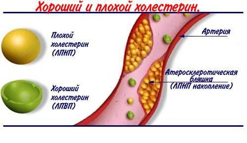 как снизить плохой холестерин в крови