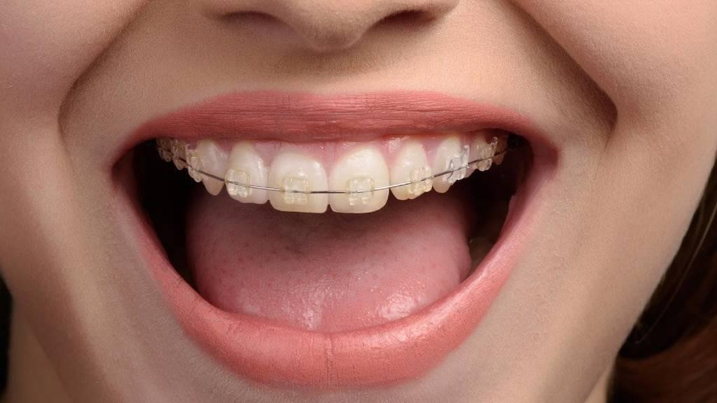 Снятие брекетов при беременности:  стоматология и лечение зубов у беременных мам и детей