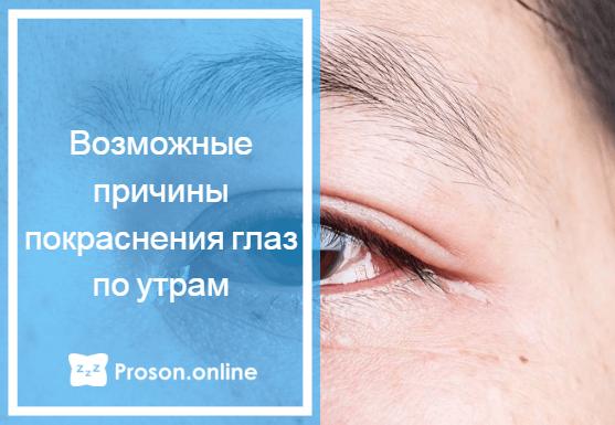 покраснение глаз после сна