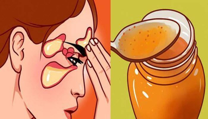 мед при насморке у взрослых
