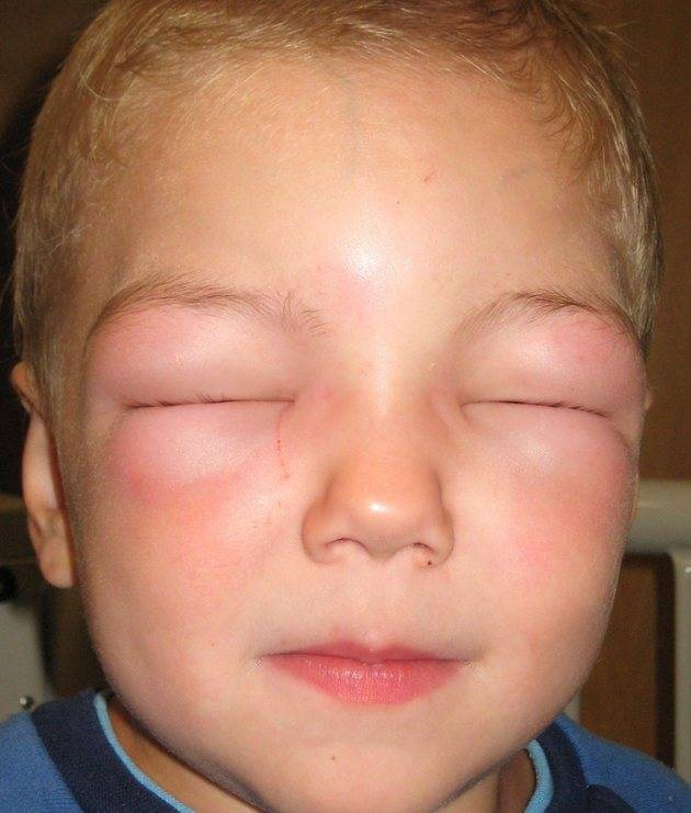 ребенка укусил комар в глаз все опухло что делать
