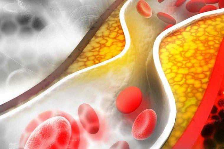 Опасный холестерин — миф? — су-джок с ангелиной пасхалиди