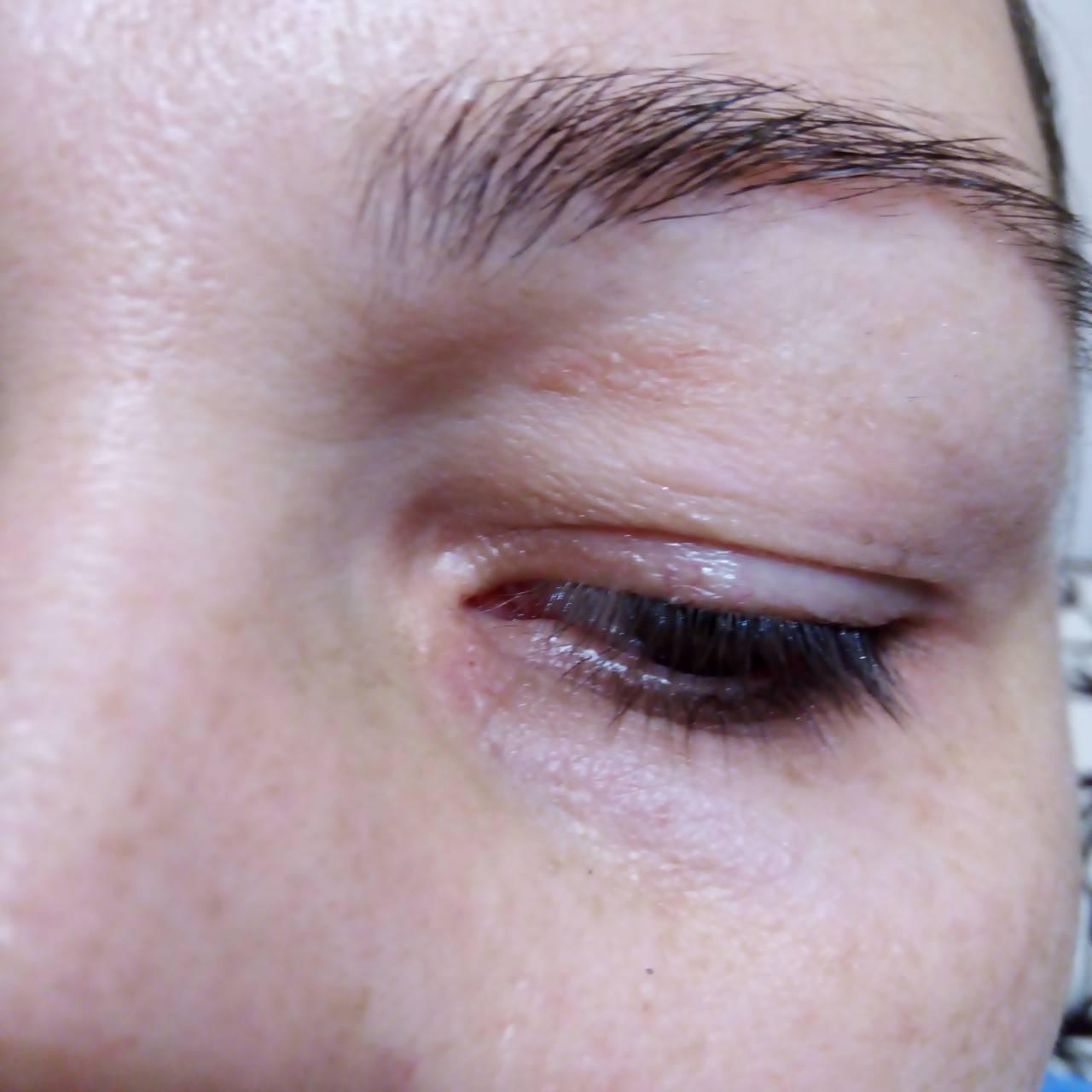 Что поможет, если под глазами красные пятна?